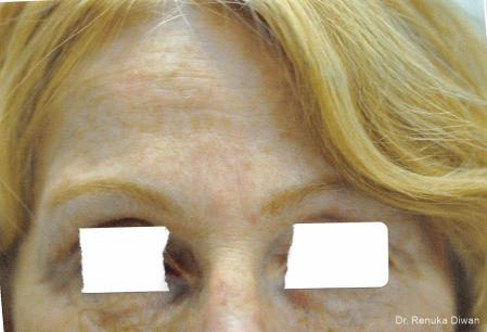Frown Lines: Patient 10 - After Image