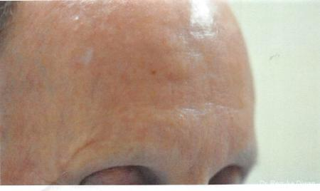 Botox-cosmetic-for-men: Patient 3 - After Image