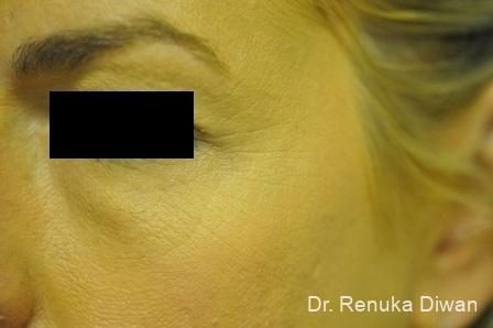BOTOX® Cosmetic: Patient 23 - Before Image 1