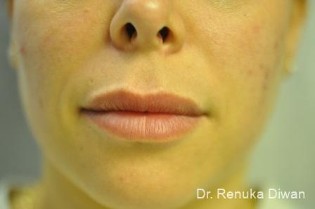 Lips And Mouth: Patient 15 - After Image 1