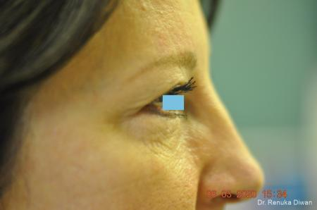 Blepharoplasty: Patient 3 - Before Image 3
