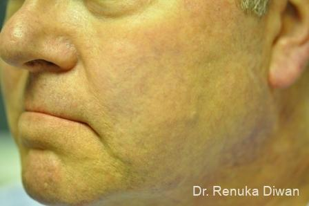 Laser For Veins And Redness For Men: Patient 1 - After Image 1