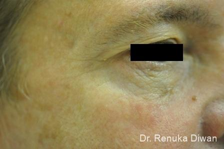 Botox Cosmetic For Men: Patient 6 - After Image 1