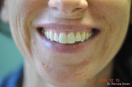 Gummy Smile: Patient 1 - Before Image
