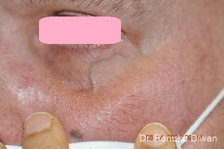 Laser For Veins And Redness: Patient 15 - Before Image 1