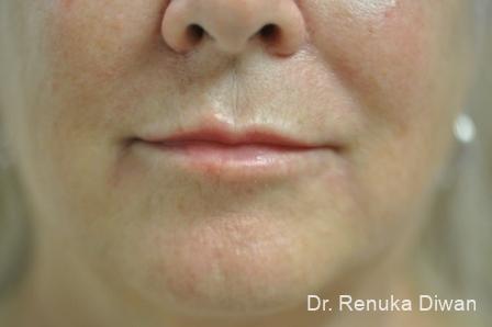Lip Augmentation: Patient 10 - After Image