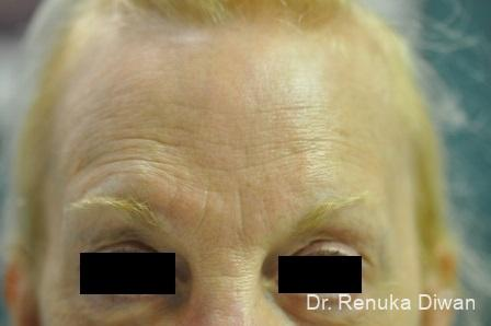 Forehead Creases: Patient 4 - Before Image 1
