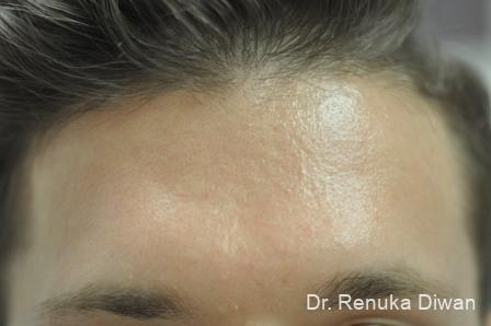 Chemical Peel: Patient 3 - After Image