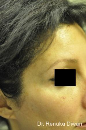 Lasers For Brown Spots: Patient 9 - After Image 1