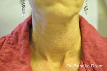 Neck Creases: Patient 2 - Before and After Image 2