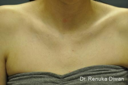 Tattoo Removal: Patient 9 - After Image 1