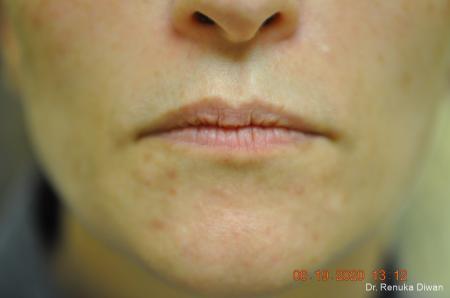 Lip Augmentation: Patient 15 - Before Image 1