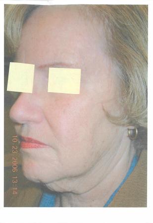 Facelift & Neck Lift: Patient 3 - Before Image