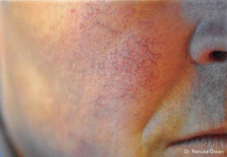 Laser For Veins And Redness: Patient 4 - Before Image