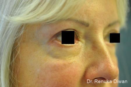 Blepharoplasty: Patient 10 - After Image 1