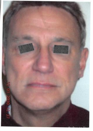 Facelift  Neck Lift For Men: Patient 1 - After Image 2