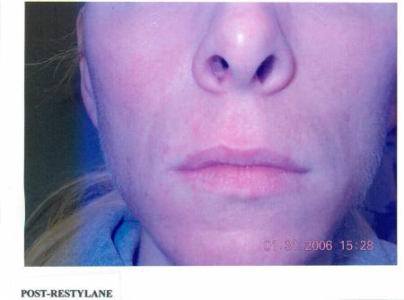 Smile Lines: Patient 6 - After Image 1