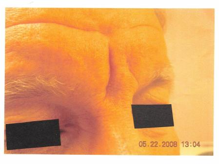 Botox-cosmetic-for-men: Patient 1 - Before Image