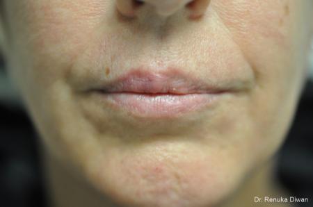 Lip Augmentation: Patient 4 - Before Image