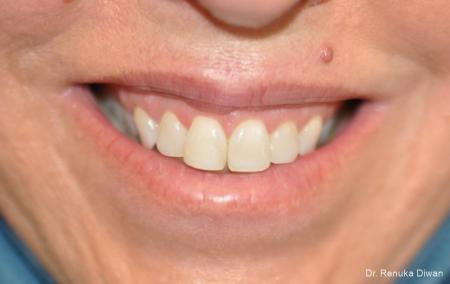 BOTOX® Cosmetic: Patient 32 - Before Image 1
