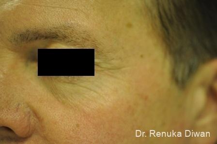 Botox-cosmetic-for-men: Patient 5 - Before Image