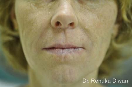 Smile Lines: Patient 3 - After Image 1