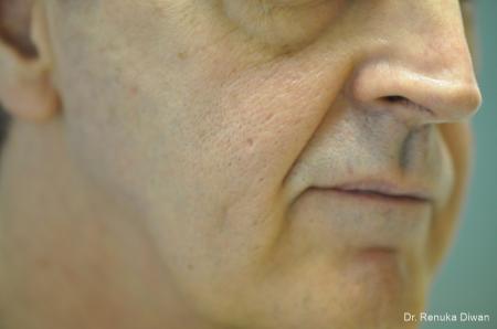 Laser Skin Resurfacing For Men: Patient 3 - Before Image 1