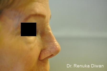 Non-Surgical Rhinoplasty: Patient 1 - After Image 1