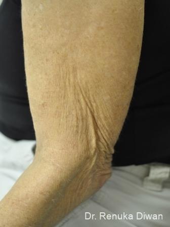Skin Tightening: Patient 6 - Before Image 1