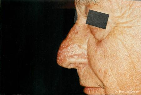 Lasers For Rhinophyma: Patient 2 - After Image