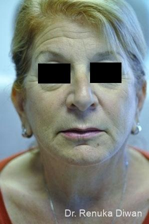 Facelift & Neck Lift: Patient 1 - After Image 1