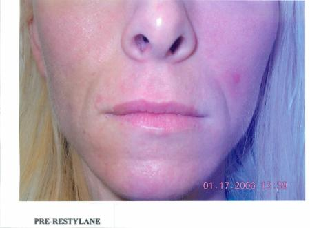Smile Lines: Patient 6 - Before Image