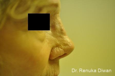 Non-Surgical Rhinoplasty: Patient 1 - Before Image 1