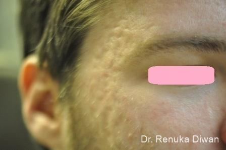 Acne Scars: Patient 4 - Before Image