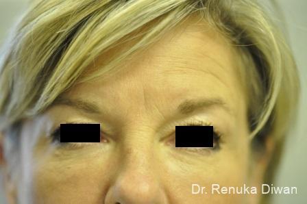 Dark Circles: Patient 12 - After Image 1
