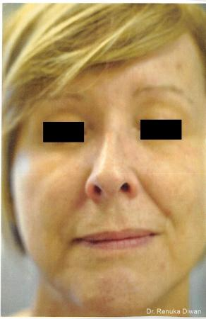Loss Of Fullness: Patient 8 - Before Image 1