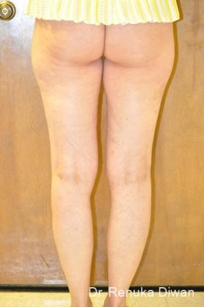 Liposuction: Patient 16 - Before and After Image 2