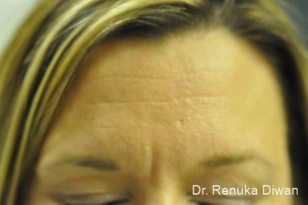 Frown Lines: Patient 1 - Before Image