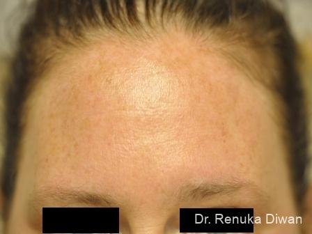 BOTOX® Cosmetic: Patient 11 - After Image