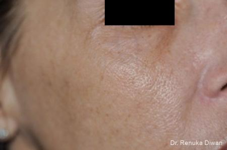 BOTOX® Cosmetic: Patient 28 - After Image 1