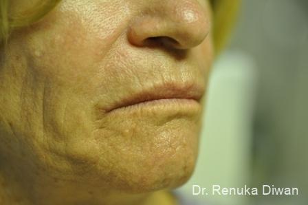 Laser Skin Resurfacing - Face: Patient 10 - Before Image 1