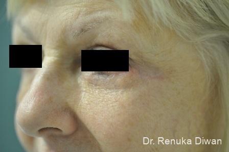 Blepharoplasty: Patient 7 - After Image 1