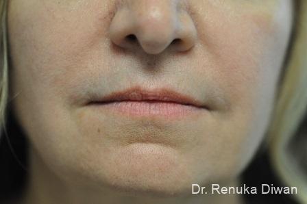 Lip Augmentation: Patient 11 - Before Image 1