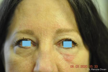 Blepharoplasty: Patient 3 - Before Image 1