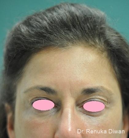 Dark Circles: Patient 24 - After Image 1