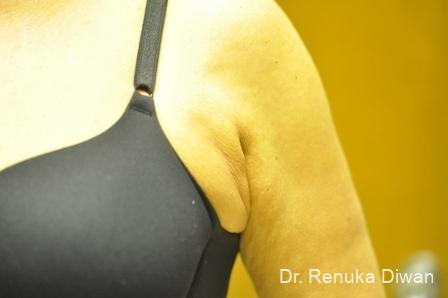 Liposuction: Patient 18 - Before Image 1