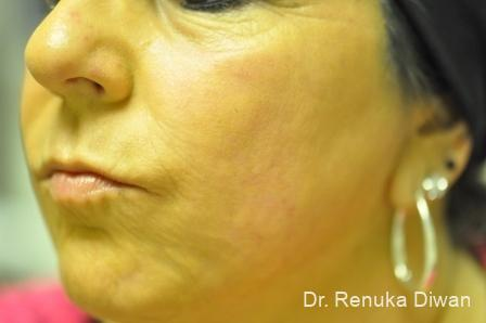 Laser Skin Resurfacing: Patient 2 - After Image
