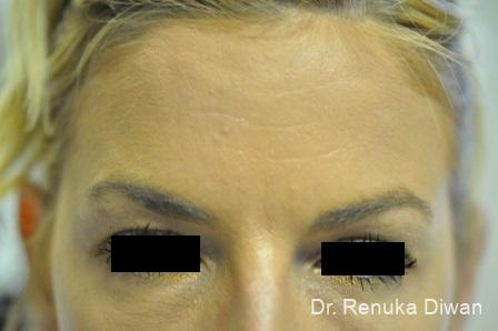 Forehead Creases: Patient 2 - After Image 1