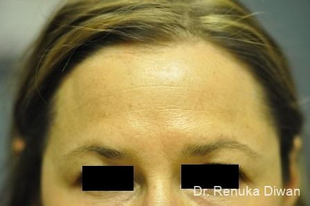 BOTOX® Cosmetic: Patient 14 - After Image