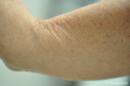 Skin Tightening: Patient 13 - Before Image 1